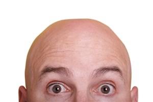 موهای سر خود را با این ۴ ماده  پرپشت  کنید