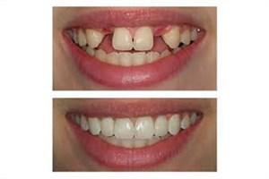 افزایش تقاضا برای زیبایی دندان/  با  ایمپلنت  بیشتر آشنا شویم