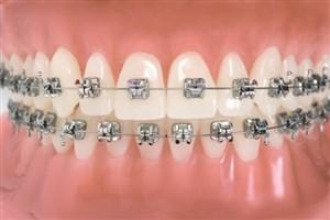 ارتودنسی؛ تنها راه ردیف کردن دندانها است؟