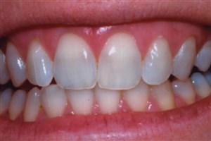 هشدار انجمن دندانپزشکان عمومی ایران:مردم فریب ارزان و در دسترس بودن بیلیچینگ خانگی را نخورند