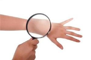 تشخیص سرطان پوست با کمک هوش مصنوعی