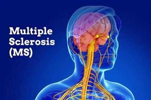 MS قابل کنترل است، اما درمان قطعی ندارد/ ابتلای ۷۵ هزار ایرانی  به ام اس