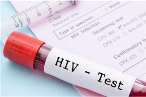 کاهش چشمگیر میزان شیوع HIV در بین خون های اهدایی