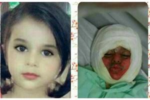 سقوط کودک سه ساله اروندکنار در دیگ غذای نذری