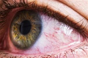 استفاده از تزریق داخل چشمی برای بیماران  دارای دیابت ، فشار خون و چربی خون