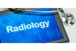نقش رادیولوژی در تشخیص بیماری کرونا