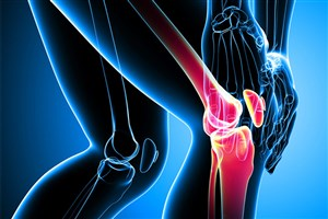 شکستگی استخوان و آرتروز؛ بیماری های شایع ارتوپدی در ایران