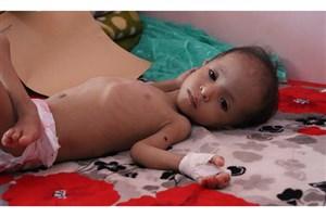 سازمان ملل خواستار لغو کامل محاصره یمن شد