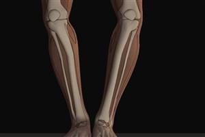 بهترین زمان برای جراحی پاهای پرانتزی