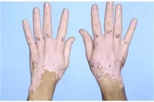این عارضه پوستی در زنان بیشتر از مردان است