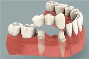 با این روش  دندانهای تخریب شده را بازسازی کنید