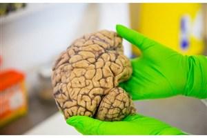 راه اندازی بانک مغز برای مطالعه مغز و بیماری ها/400 نفر برای اهدای مغز ثبت نام کرده اند