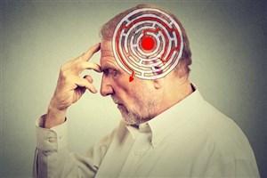 نقش موثر اضطراب در ابتلا به آلزایمر