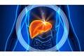 Iranian Researcher Discovers Hepatic Regulation Modulates Non-Alcoholic Fatty Liver Disease