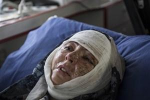 گزارشی از دومین اسید پاشی در تبریز/ اسید پاش همچنان فراری است!