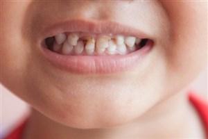 حدود90درصد کودکان 6ساله دچار پوسیدگی دندان هستند