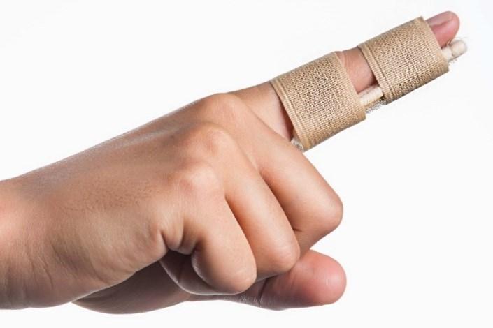 شکستگی انگشت