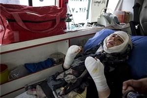 صورت مریم قربانی اسید پاشی  تبریز جراحی شد/ شوهرم پس از 11 سال زندگی به صورتم اسید پاشید