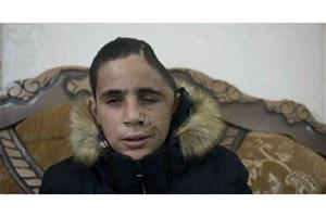 نوجوان آسیب دیده فلسطینی همچنان استوار