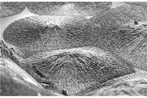 Researchers Develop Material That Could Regenerate Dental Enamel