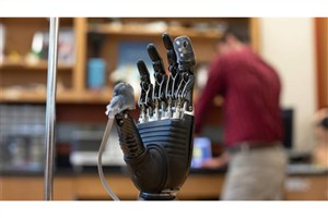 Researchers Develop New 'E-Dermis' Brings Sense of Touch, Pain to Prosthetic Hands