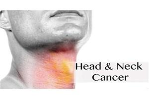دخانیات و  الکل دوعلت  ابتلا به سرطانهای سر و گردن