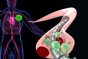 Researchers Create Magnetized Wire to Detect Cancer