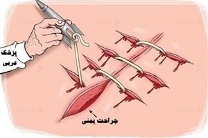 موشک عربی، سوزن جراحی زخم یمن
