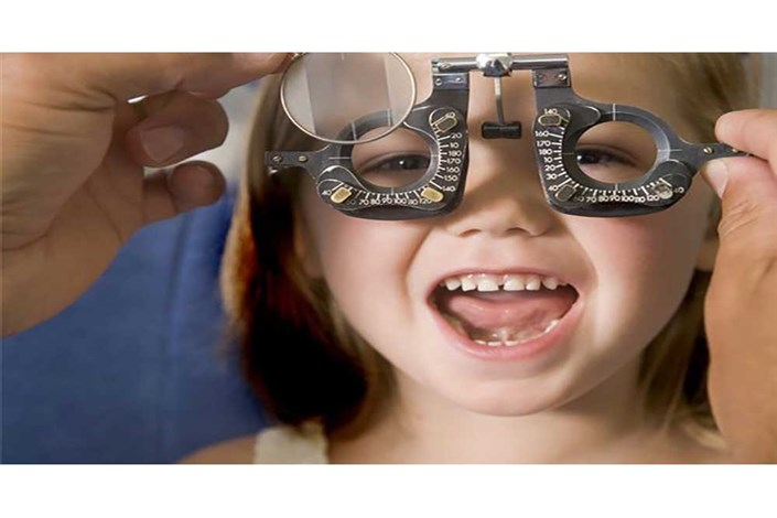 مشکلات چشمی کودکان