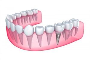 بهینهسازی طول تاج ایمپلنت دندانی و کمک به استحکام ایمپلنت و بافتهای اطراف