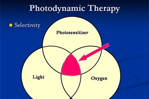 Iranian Scientists Apply Photodynamic Therapy to Destroy Cancer Cells