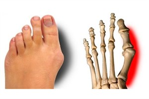دلیل  انحراف  شصت پا چیست؟/ بهترین زمان درمان صافی کف پا