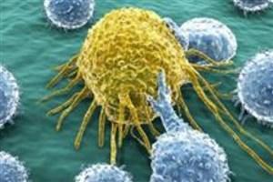 صرفهجویی 150 میلیارد تومانی برای درمان سرطان