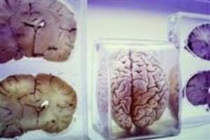 موزهای متفاوت برای اکتشاف درباره مغز