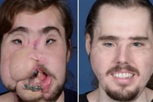 کمک علم به بازیابی چهره مرد 26 ساله