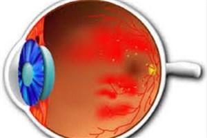 تولید آزمایشگاهی «مینی شبکیه» برای بازگرداندن بینایی