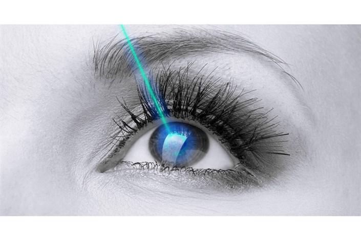 لیزیک چشم