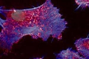سلول های سرطانی می توانند راه خود را از میان بافتهای بدن با هول دادن پیدا کنند