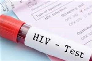 گیرنده معیوب ایمنی  دلیلی برای مشکلات HIV