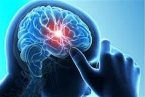 مهار آسیب سکته بهوسیله عمل روی ماتریکس پیرامون سلول های عصبی