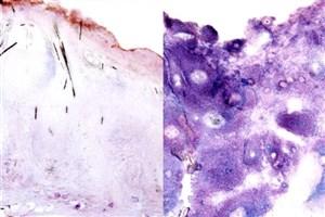 ارتباط رشد سرطان با گلوکز