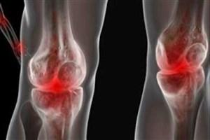 داربست های زیست فعال راهی برای تسکین درد زانو و ترمیم غضروف