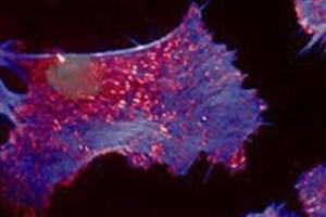 سلول های بنیادی می توانند آسیب بافتی ناشی از پرتو درمانی را مهار کنند