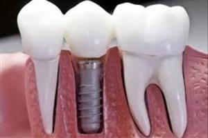 رفع وابستگی به نانوکامپوزیت دندانی توسط استارتاپی نوپا انجام شد