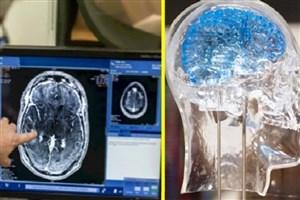 شورای مشاوران نقشهبرداری مغز ایران تشکیل میشود