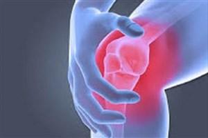 تسکین دردهای زانو با استفاده از داربست های زیستی