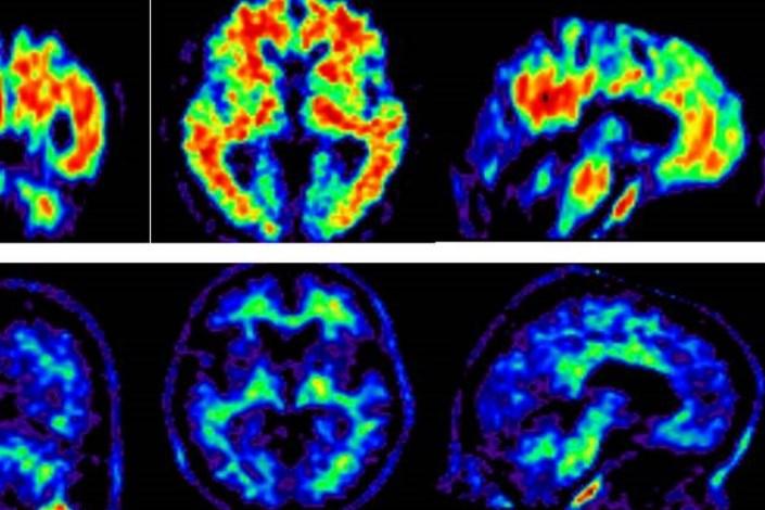 تصویربرداری مغز