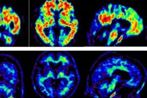 شناخت  اعتیاد بااستفاده از تکنیکهای تصویربرداری مغز