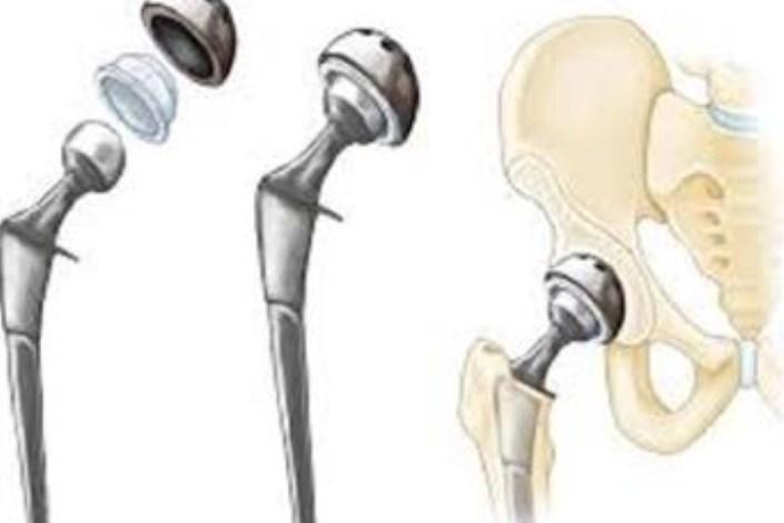 ایمپلنت استخوان