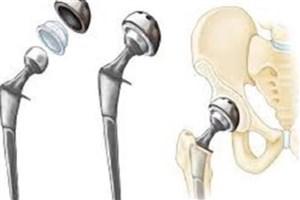 معرفی نانو روکشهای جدید برای ایمپلنتهای استخوانی